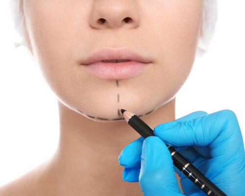 Leistung für Gesichtsmodellierung - Dr. med. Philippi - Praxis für ästhetische Medizin Rosenheim