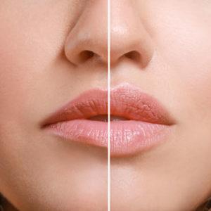 Leistung für Lippenvergrößerung & -modellierung - Dr. med. Philippi - Praxis für ästhetische Medizin Rosenheim